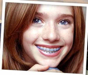 braces kid